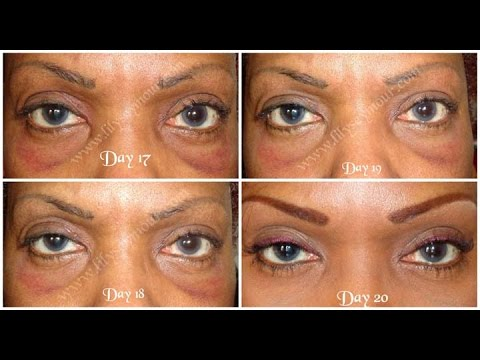 Part 4:  Hooded Eyelid Surgery | Blepharoplasty | Day 17 - 20 Post-op