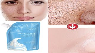 Salicylic Acid Ice Cream Face Mask Honest Review The Truth Of Viral Video Salicylic Acid Mask