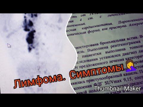 Лимфома Ходжкина. Симптомы и постановка диагноза