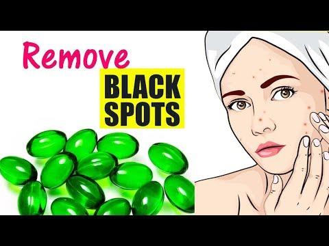 Dark Spots on Face Removal Naturally | Remove DARK SPOTS, BLACK SPOTS and ACNE SCARS