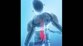 علاج هشاشة العظام طبيعيا Healing Osteoporosis Naturally