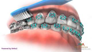 Brushing & Flossing while in Braces - Orthodontic Instruction