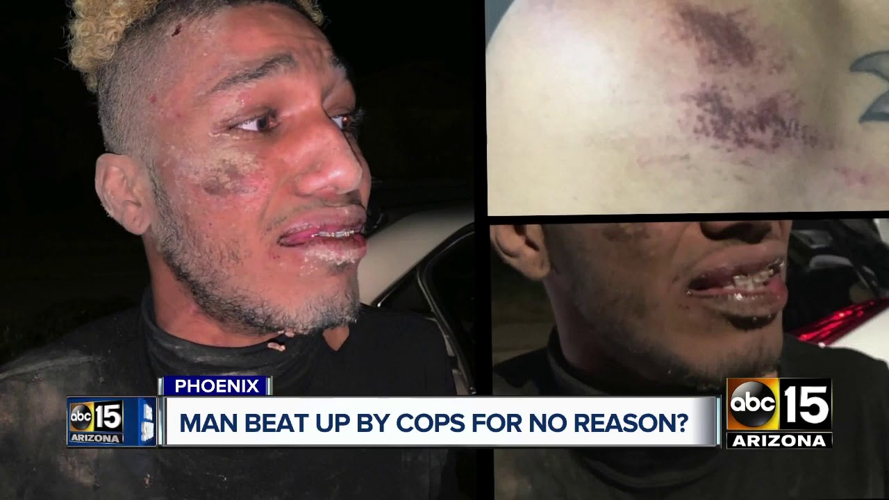 Valley man says he was beat up by police for no reason