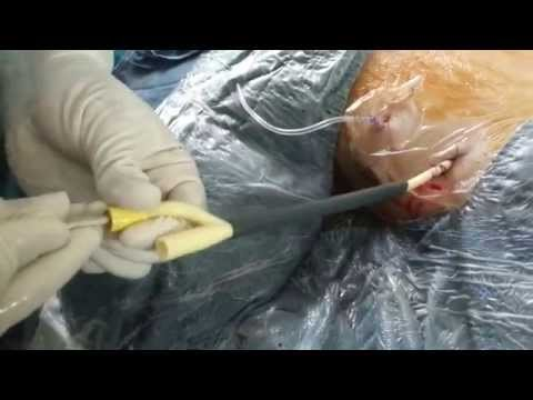 How to remove the Amplatz sheath and keep the nephrostomy Foley catheter valve