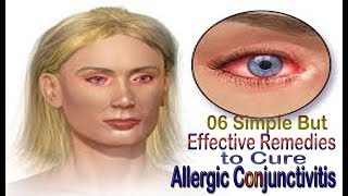06 Simple But Effective Remedies to Cure Allergic Conjunctivitis