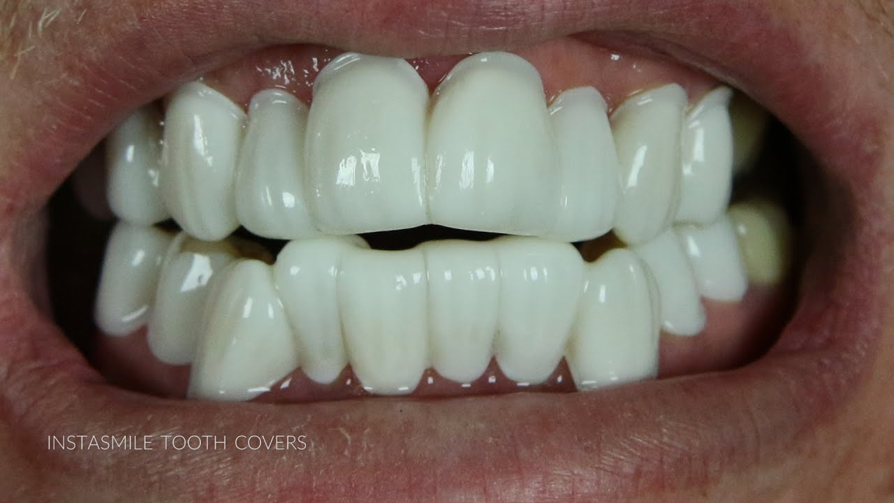 teeth covers for bad teeth