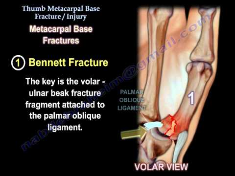 Thumb Metacarpal Base Fracture Injury - Everything You Need To Know - Dr. Nabil Ebraheim