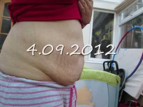 pictures of a stomach before and after-weight loss skin tightening