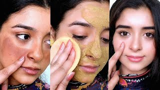 Toner to Remove Dark Skin Patches, Spots & Chaiyan !!