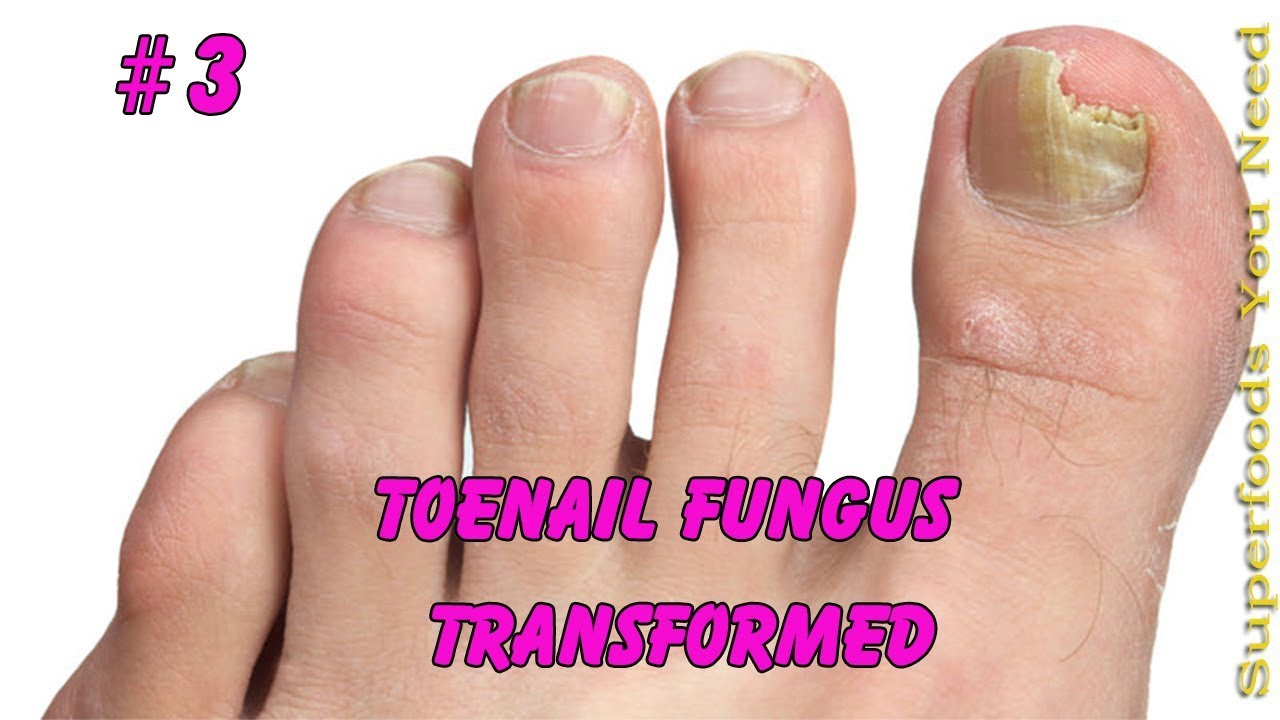 Toenail Fungus Transformed into Pretty nail #3 | Toenail pedicure ...