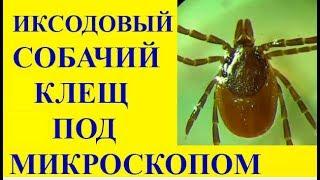 Клещ Под Микроскопом: История про Иксодовых Клещей и Собачьего Клеща  Ixodes ricinus(, 2015-03-22T09:55:19.000Z)