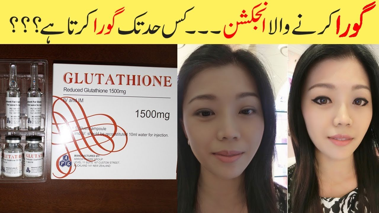 Glutathione Skin Whitening Injections Explained Before & After Results Urdu  HIndi
