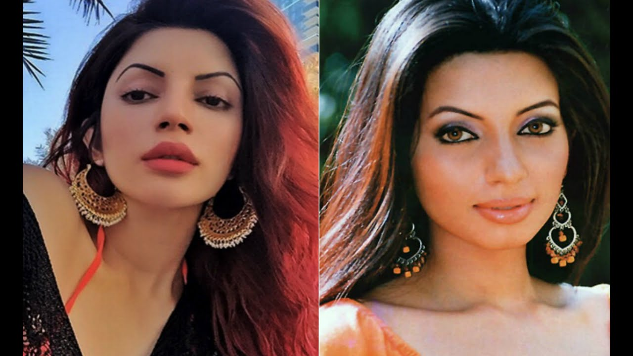 Tv Actress Before And After Plastic Surgery Youtube
