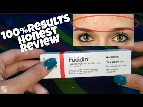 Fucidin Cream 100% Honest Review Clear Forehead Small Bumps |Makeup by Sadia|