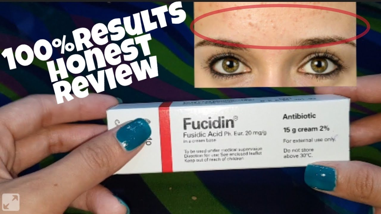 Fucidin Cream 100 Honest Review Clear Forehead Small Bumps Makeup By Sadia Youtube