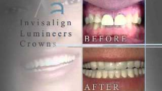 Alouf Cosmetic and Implant Dentistry Salem Roanoke, VA Thumbnail