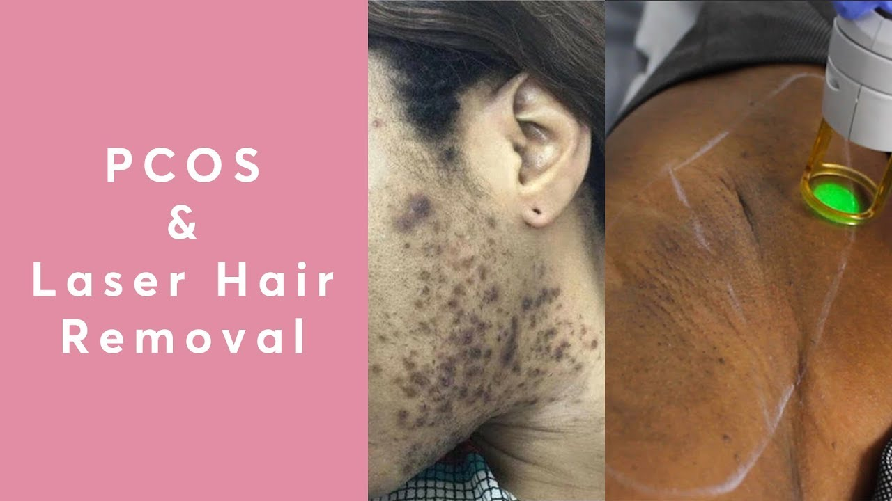 Does Laser Hair Removal Work For PCOS?