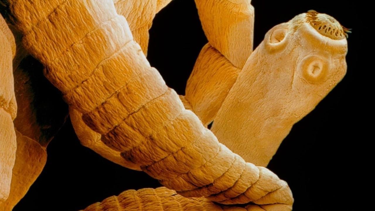 как узнать есть ли в человеке паразиты