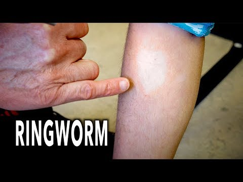 YOUNG GYMNAST GETS RINGWORM | Dr. Paul