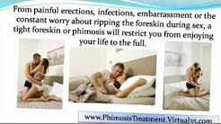 phimosis treatment cream - phimosis treatment circumcision