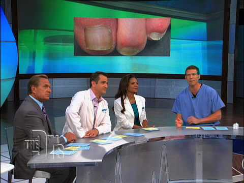 The Doctors on Laser Toenail Fungus Removal
