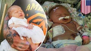 キスでヘルペスウイルス感染 生後10日の赤ちゃん死亡