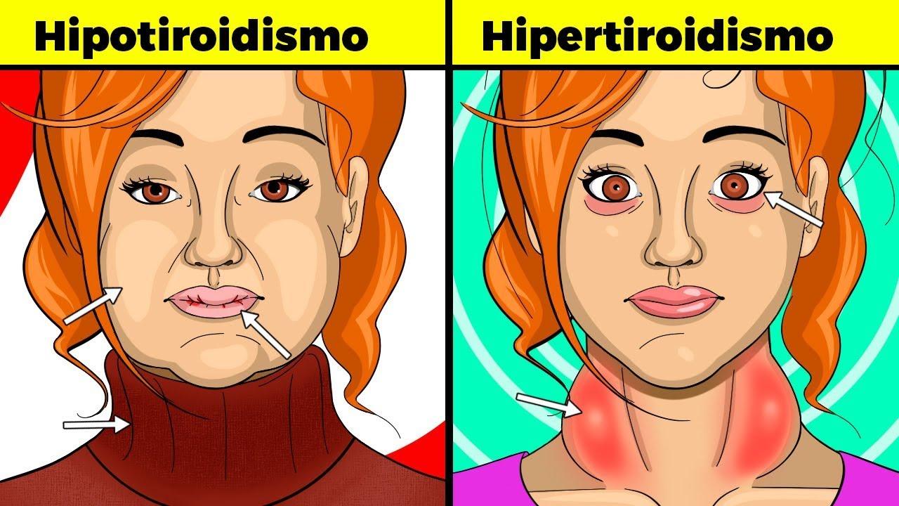 tiroides sintomas mujeres 40 años