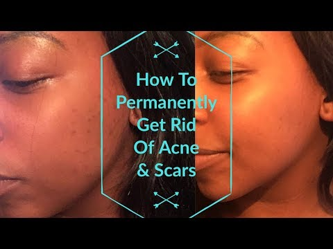 How To Get Rid Of Acne| Coconut Oil & Baking Soda Exfoliate