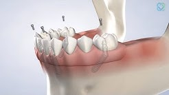 Full Arch Restoration in Stephenville, TX | Stephenville Oral Surgery & Dental Implants