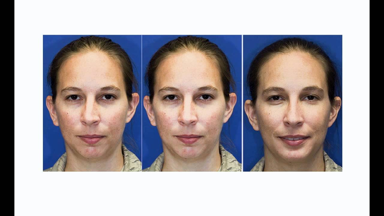 Before & After Seattle Rhinoplasty (Nose job) | Crooked Nose and Chin  Augmentation