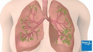 How chronic obstructive pulmonary disease (COPD) develops