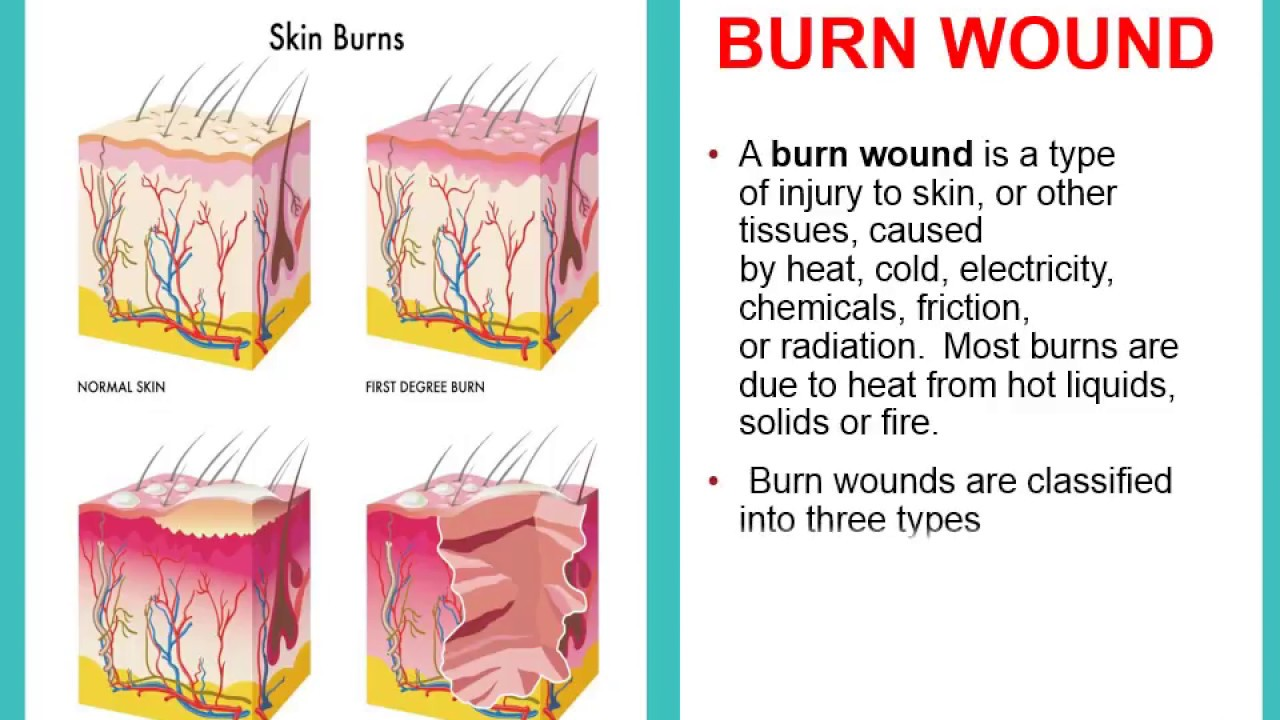 types of burn wound