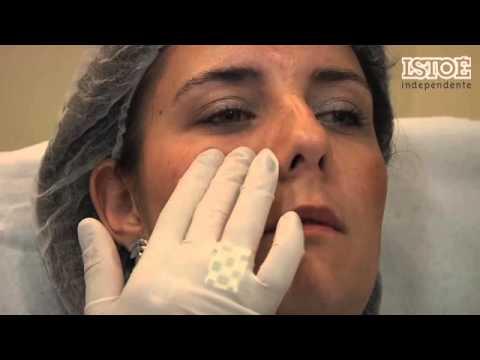 Ácido hialurônico - antes e depois 1