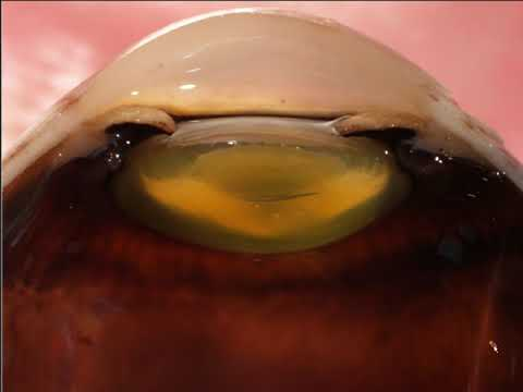 Normal Anatomy of the Human Eye -  Adventures in Neuropathology