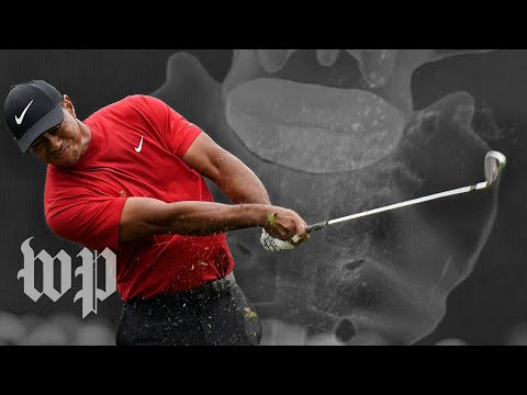 The spinal surgery that made the Tiger Woods comeback a reality