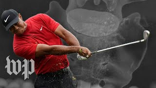-spinal-surgery-tiger-woods-comeback-reality