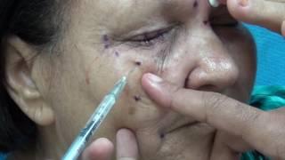 Espasmos sintomas faciais de