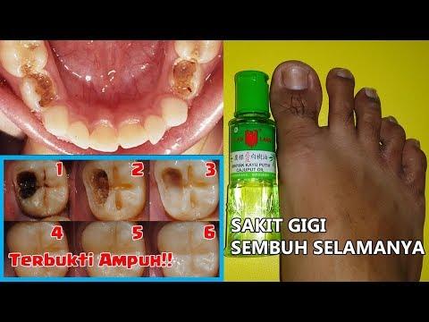 Cara Menyembuhkan Sakit Gigi Dalam 1 Hari Bisabo Channel
