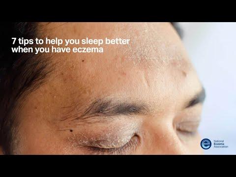 About Face: Managing Facial Eczema