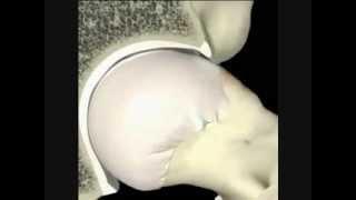 Impacto Fêmoro Acetabular - tipo CAM
