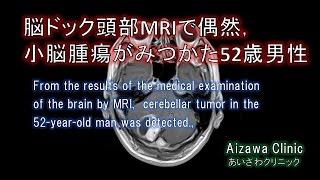 脳ドックMRIで,脳腫瘍が小脳MRIでみつかった脳ドックの症例.脳ドック後,造影MRIで造影効果あり近医で精査加療となった脳ドックMRIを例示.脳ドックでは脳神経外科専門医が,結果を当日解説します.