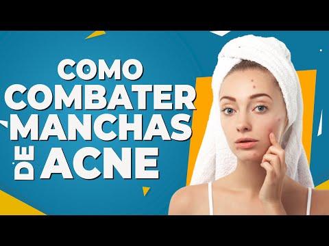 Como Combater Manchas de Acne - Dr Lucas Fustinoni