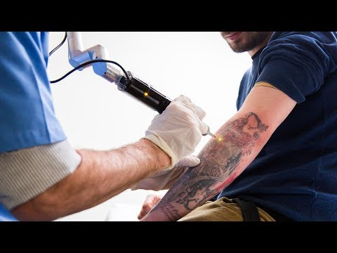 Tattoo Removal Laser Surgery