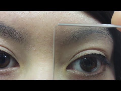 Orthoptic Clinical Skills - Assessment of Binocular Vision