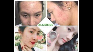 mỹ phẩm Almonds Ca mụn nặng cấp độ cao