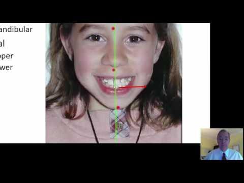 Interceptive Treatment Part 5 1
