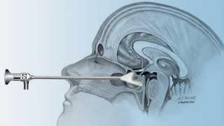 Pituitary Tumor Jims Story