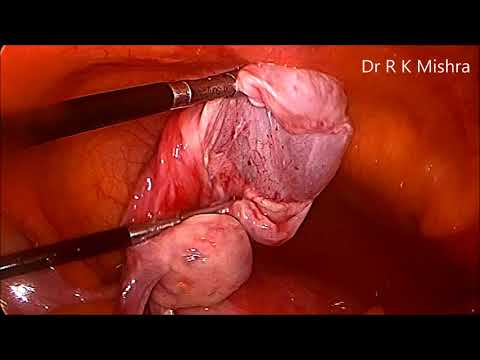 ovarian-cystectomy-for-left-ovarian-cyst