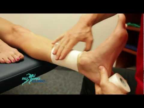 Diagram Of Tibia Stress Fracture Hw 2000i Inverter Wiring Shin Splints Taping Medial Tibial Syndrome Youtube