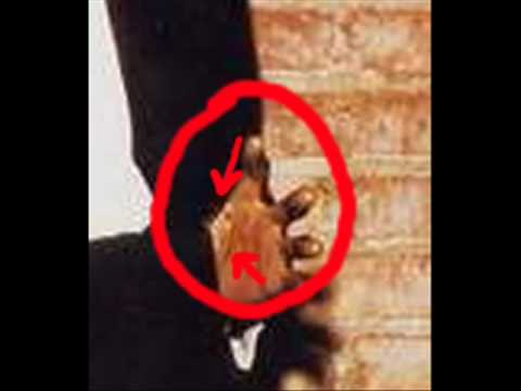 Michael Jackson's Vitiligo (HE DID NOT BLEACH HIS SKIN!)